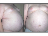 Photo credit: Wikipedia - Picture of an Obese Teenager (146kg/322lb) with Central Obesity.