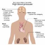 Top Physician Calls For The Re-Thinking Of High Blood Pressure