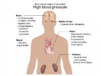 Photo credit: wikipedia - Main complications of persistent high blood pressure.