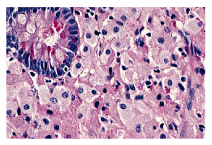 Photo Credit: Wikimedia Commons - Accumulation of foamy macrophages in small intestinal lamina propria, in Whipple's disease.