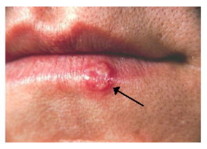 Photo Credit: Wikipedia - Cold sore of the lower lip.