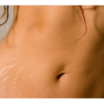 Can Stretch Mark Be Treated