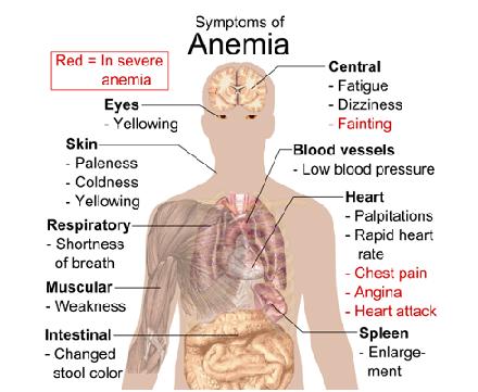 Photo Credit: Wikimedia Commons - Symptoms of anemia.