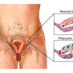 Living With Polycystic Ovarian Syndrome (PCOS)