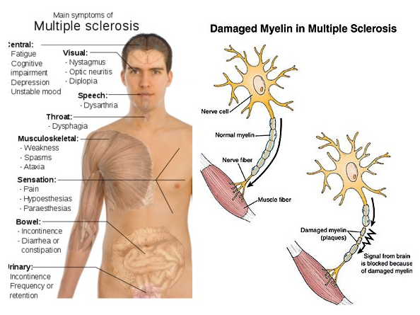 Main Symptoms of Multiple Sclerosis and damanged Myelin.