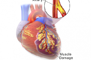 Photo Credit: Blausen Medical Communications, Inc. - A myocardial infarction occurs when an atherosclerotic plaque slowly builds up in the inner lining of a coronary artery and then suddenly ruptures, causing catastrophic thrombus formation, totally occluding the artery and preventing blood flow downstream.