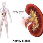 Who Is At Risk Of Getting Kidney Stones?
