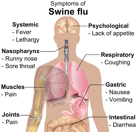 Jamaica     Two Cases Of Swine Flu Confirmed   The Readers