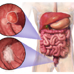 What Do You Know About Colorectal Cancer?