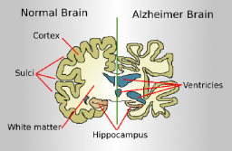 Increasing Trend In Alzheimer's Disease-Related Deaths