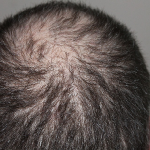 The Truth About Baldness And Castor Oil