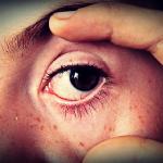 How To Overcome Cataract