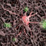 New Alzheimer's Drug Approved By FDA